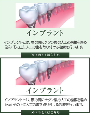 インプラント インプラントとは、顎の骨にチタン製の人工の歯根を埋め込み、その上に人工の歯を取り付ける治療を行います。 くわしくはこちら
